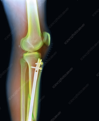 Pinned leg fracture, X-ray
