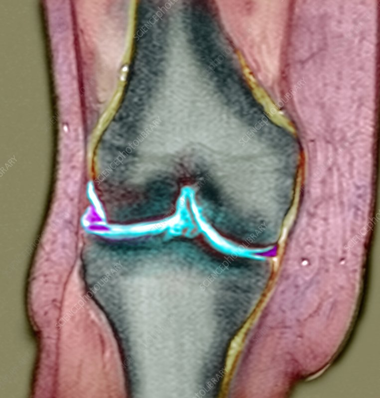 Knee meniscus tear