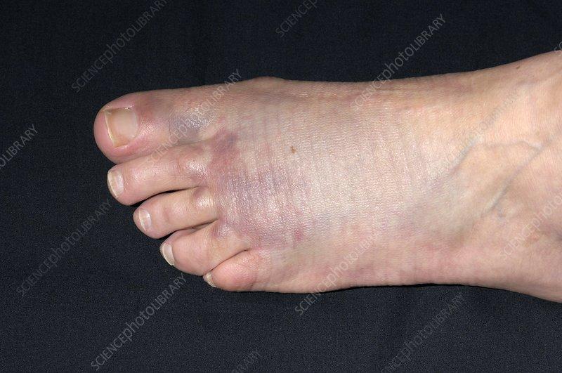 Bruised foot following crush injury