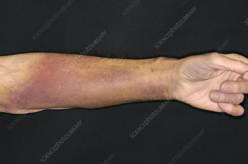 Bruised Warfarin Patient S Arm Stock Image M330 1723