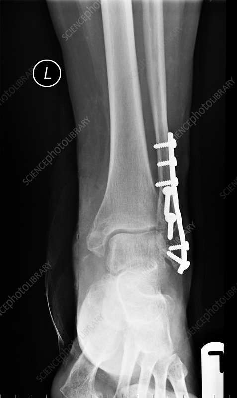 Pinned ankle fracture, X-ray