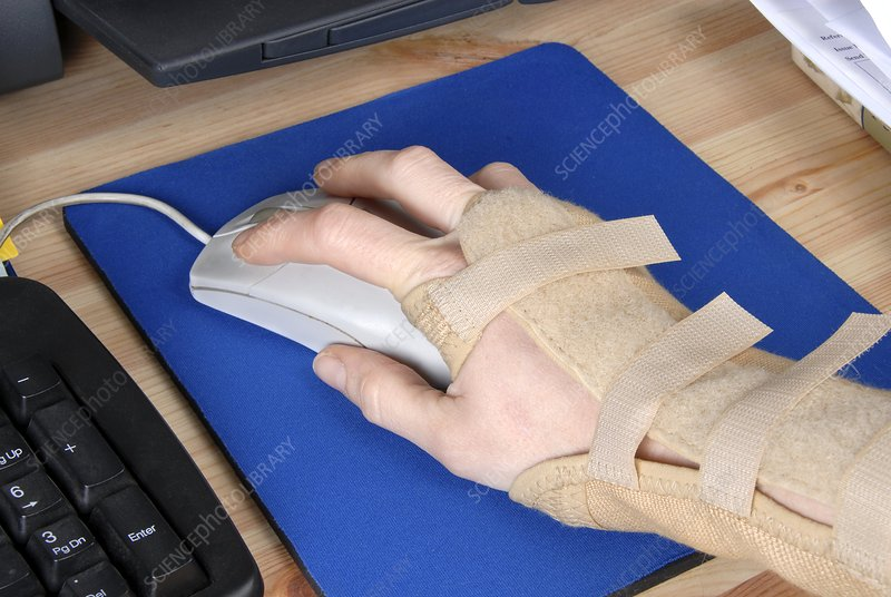 Wrist brace, repetitive strain injury
