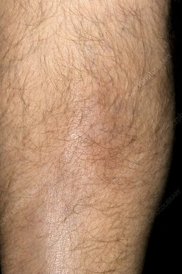 Superficial phlebitis after leg injury