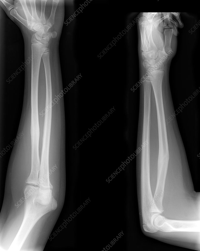 Healed Arm Bone Fracture X Rays Stock Image M3301768 Science