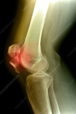 Kneecap fracture, X-ray