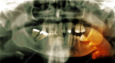 Fractured jawbone, X-ray
