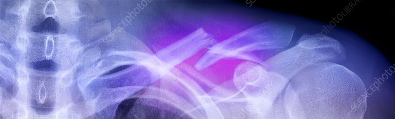 Fractured collar bone, X-ray