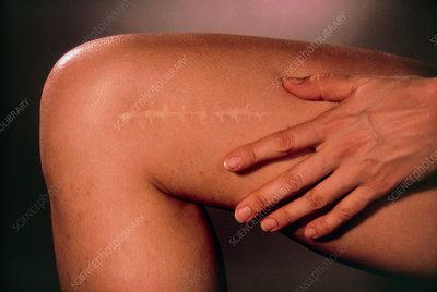 Operation scar on woman's leg