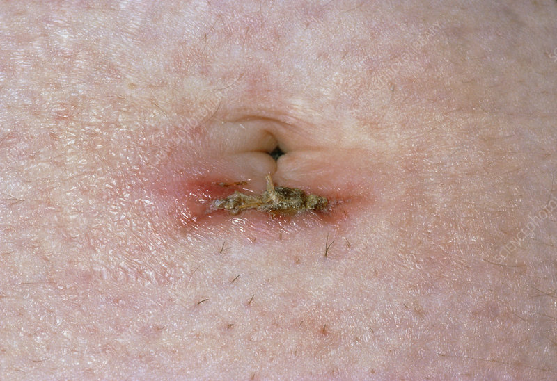 Close up of infected laparoscopy scar