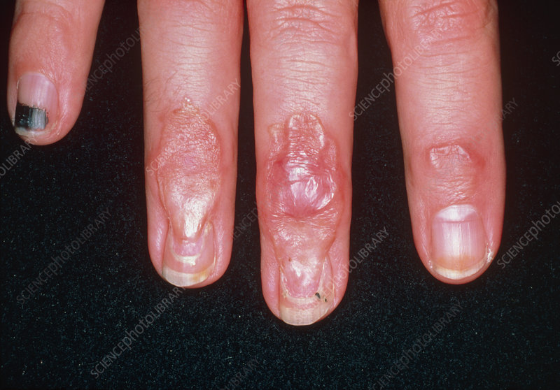 Scars on fingers due to crushing injury