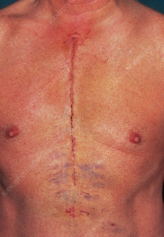 Coronary bypass scar on chest of male patient