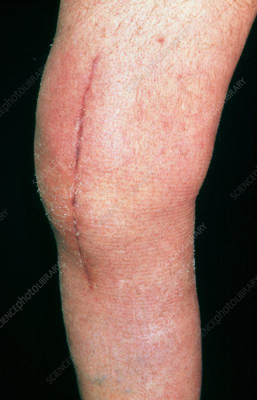 Post-operative scar: knee of elderly male patient