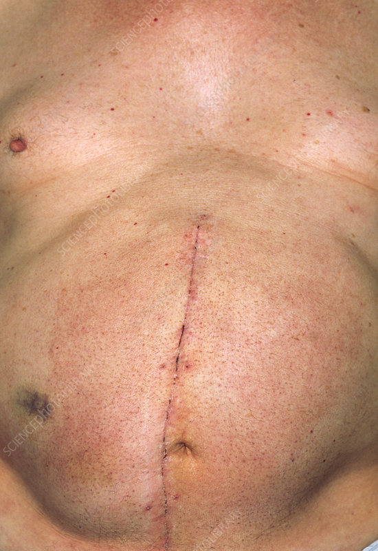 Close-up of abdomen scar after aneurysm operation