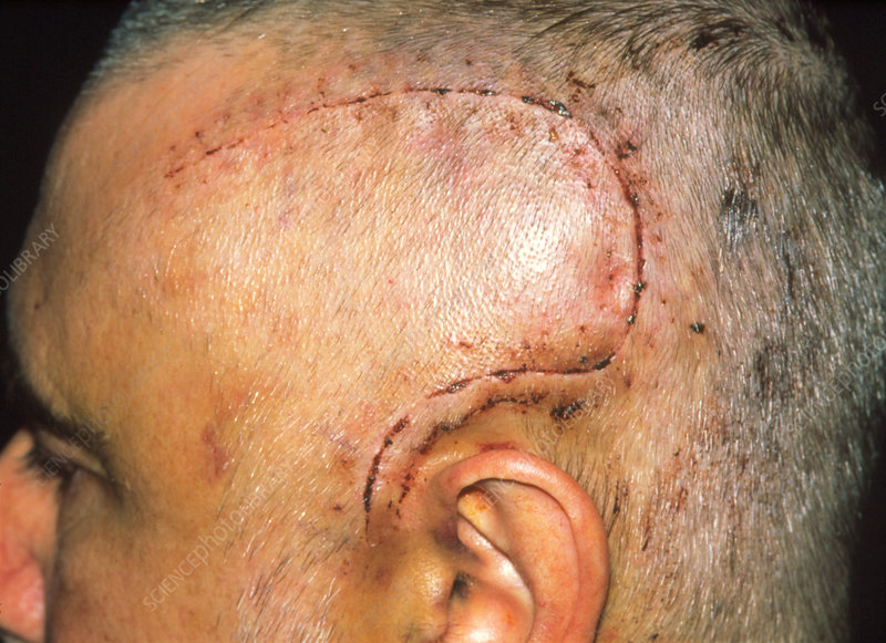 Scarring of the head after craniotomy operation