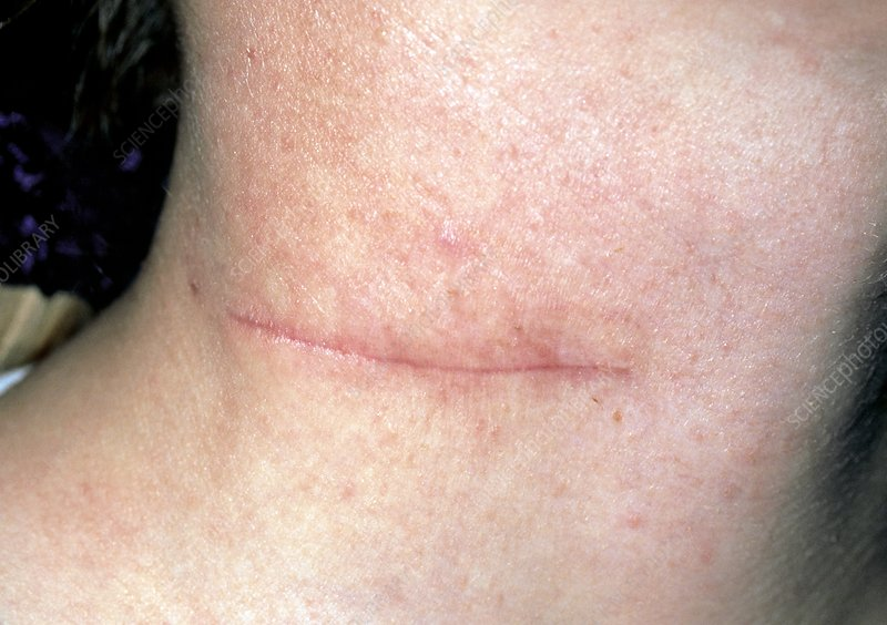 Scar on the neck after removal of branchial cyst