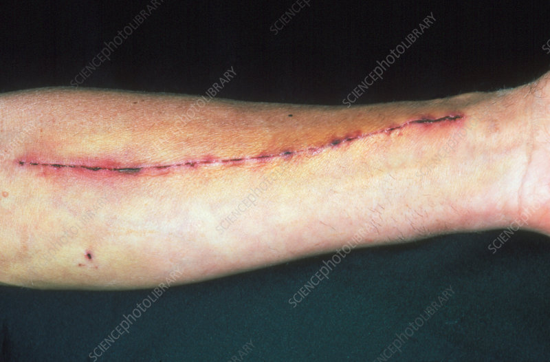 Radial artery excision scar on man's arm