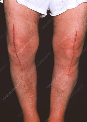 Knee surgery scars