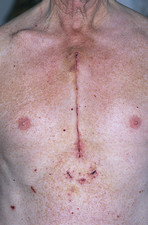 Coronary bypass chest scar