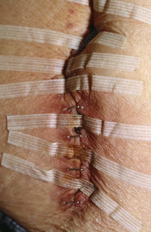 Bowel operation scar