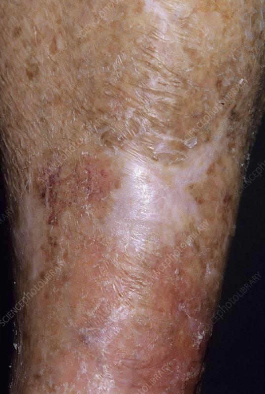Scar on a woman's leg