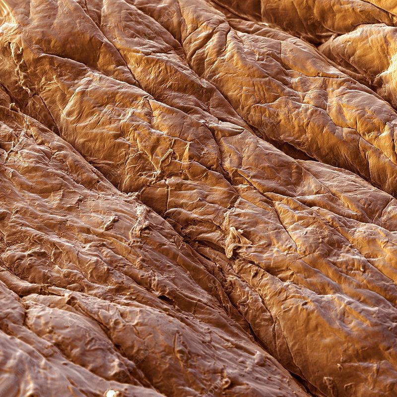 Skin near a scar, SEM