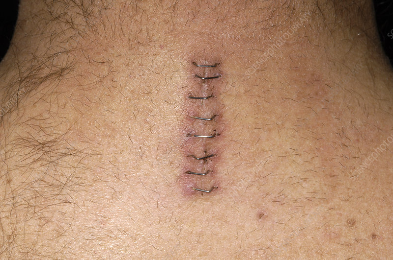 Spinal surgery scar