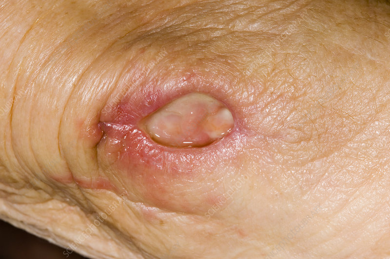 Post-operative wound abscess