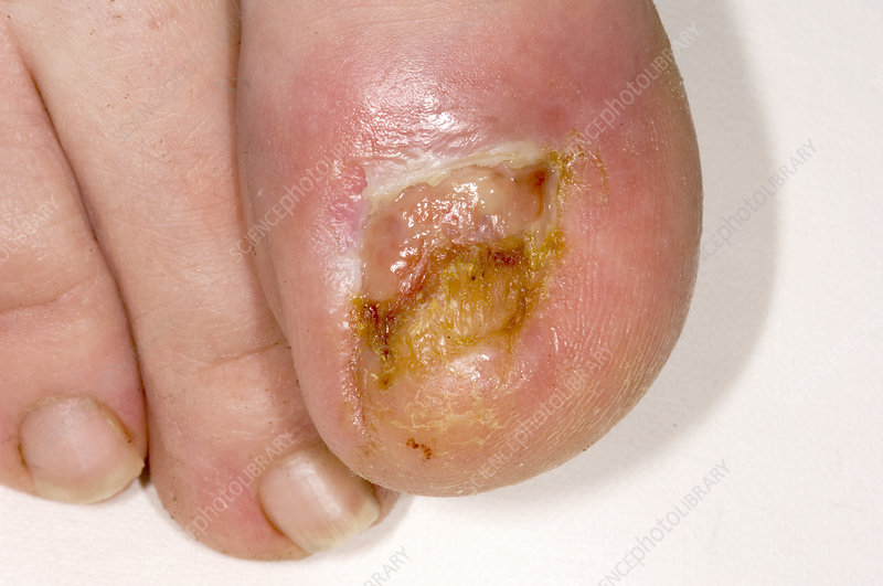 Infected toenail bed a...