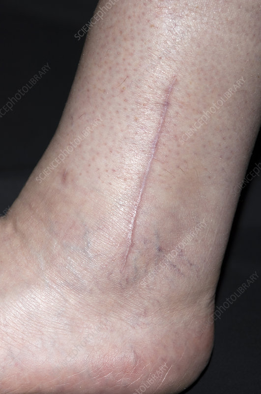 Scar on a fractured ankle