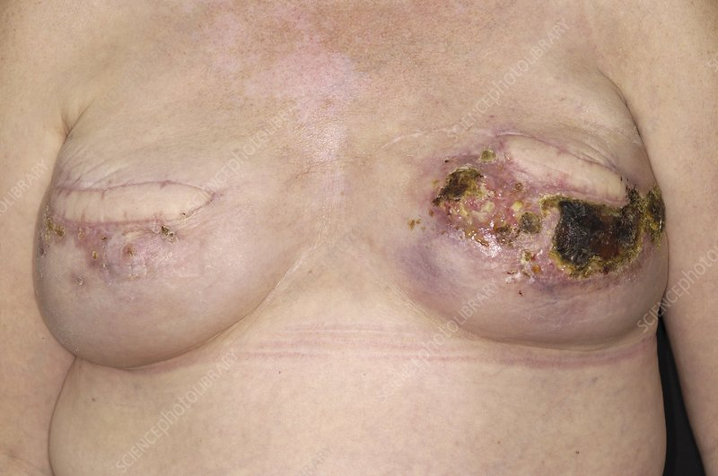 Infected wound after breast surgery