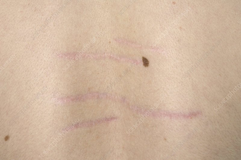 Stud mark scars on back
