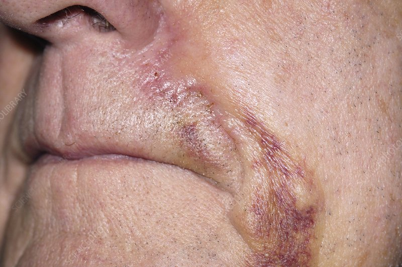 Bruising following skin cancer surgery
