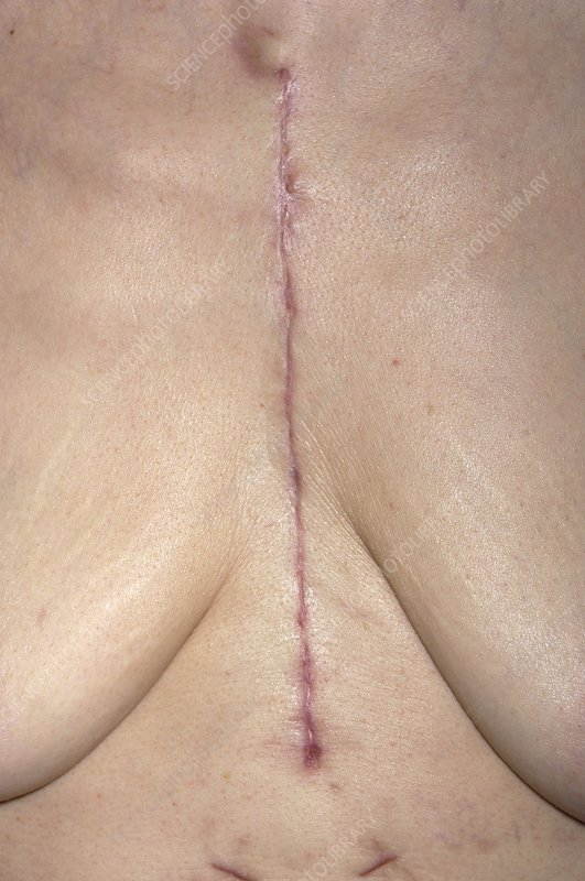 Scar following open chest aortic surgery