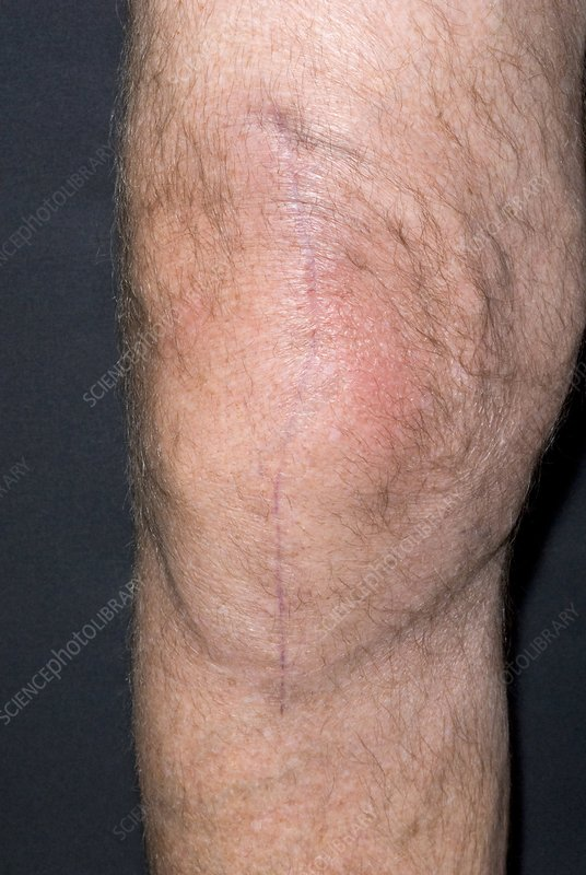 Knee replacement scar