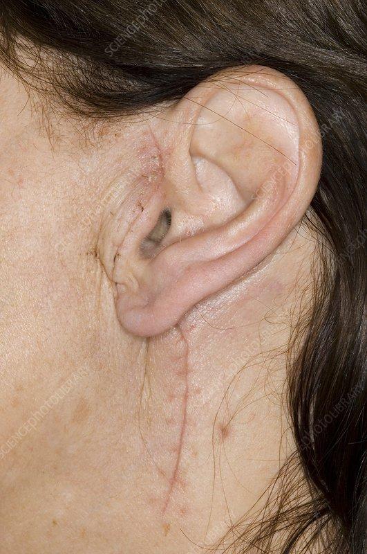 pleomorphic adenoma surgery cost