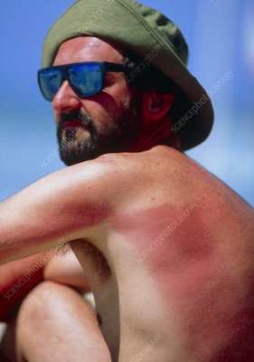 Sunburn on man's back and arm
