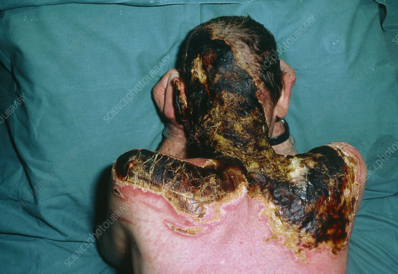 Severe burns to a man's neck & shoulders