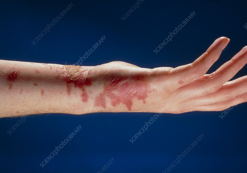 Burn on lower arm and hand caused by boiling fat