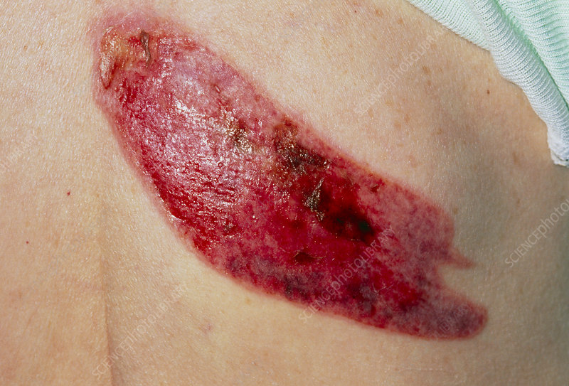 Burn on woman's shoulder from resting on radiator