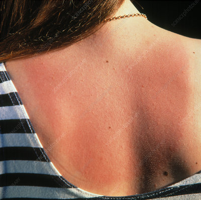 Red skin on the back of a sunburnt woman