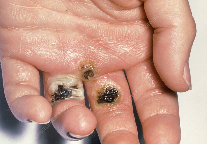 Blistering caused by electrical burns on a hand - Stock Image - M335