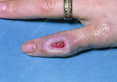 Localised third degree burn on woman's finger