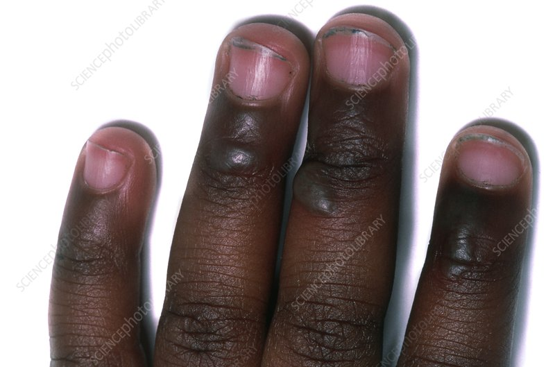 Fingers showing non-accidental second degree burns