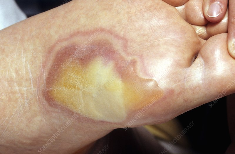 Second degree burn on the sole of a foot