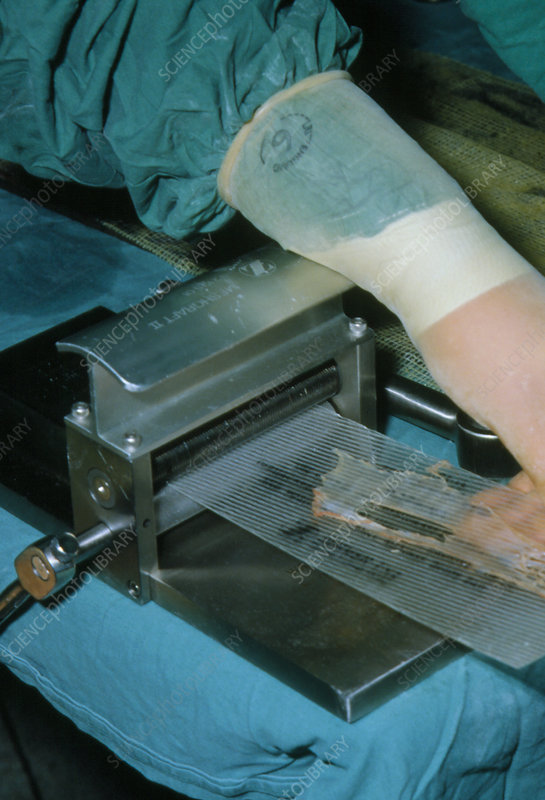 Preparation of mesh skin graft