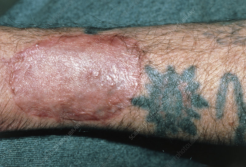 Skin graft on arm to remove tattoo