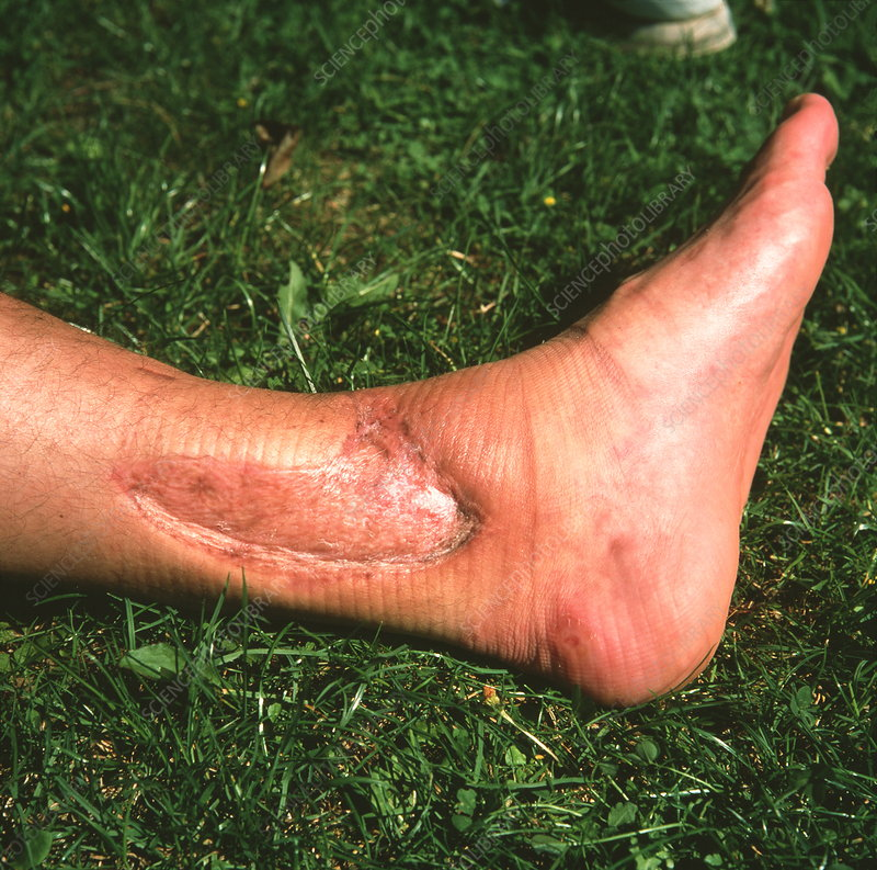 Ankle skin graft