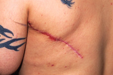 Skin graft removal site