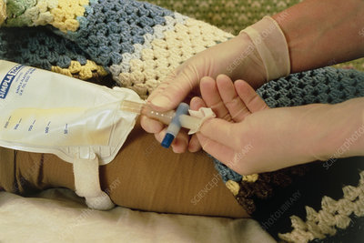Gloved hands clean a urinary incontinence bag