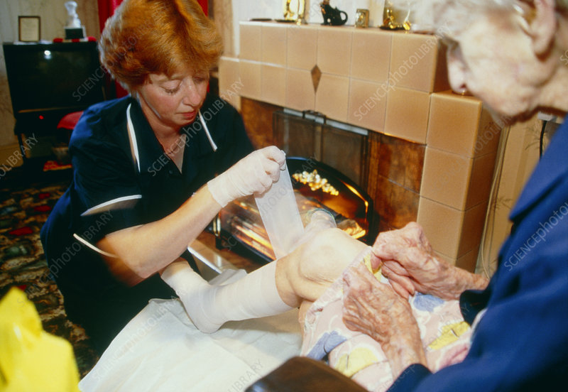 District nurse bandages elderly woman's leg ulcer